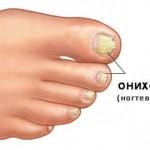 Как избавиться от грибка на ногтях ног