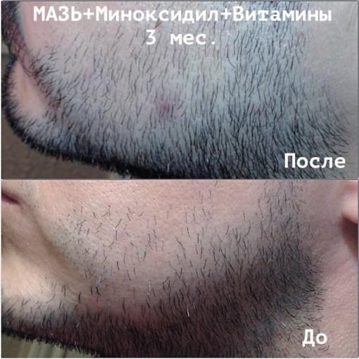 Средства стимулирующие рост волос